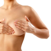 Breast augmentation with breast implant (silicone)